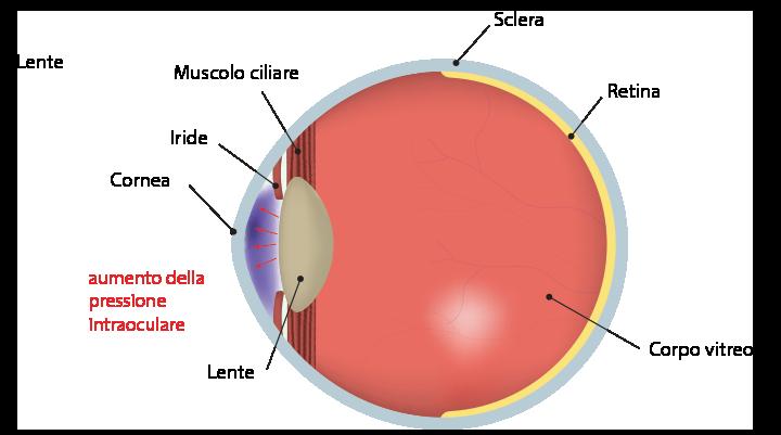 immagine occhio con glaucoma