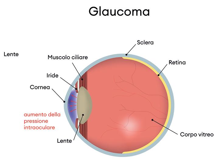 immagine occhio glaucoma